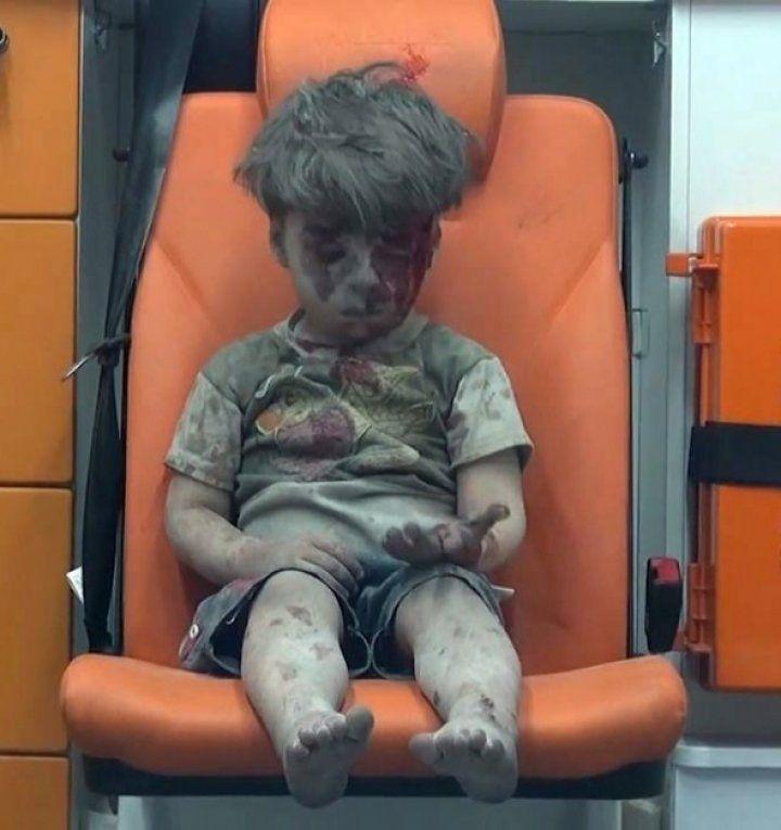 Enkazdan kurtarılan Suriyeli çocuğun insanlığı utandıran görüntüsü
