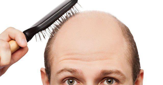 Saç dökülmesinin nedeni mutlaka araştırılmalı