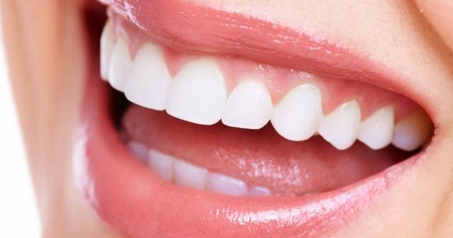 Diş taşı ağız sağlığını olumsuz etkiliyor