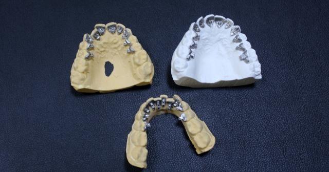Türkiye'de ilk kez 'saklı' diş teli üretildi