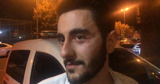 Reynmen gazetecilere saldırdı